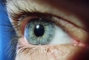 retinopatiya
