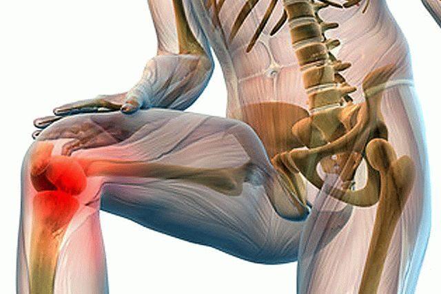 Псориаз суставов симптомы Суставы