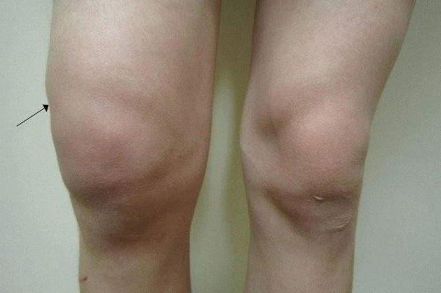 Кровоизлияние в сустав реабилитационный период после эндопротезирования коленного сустава