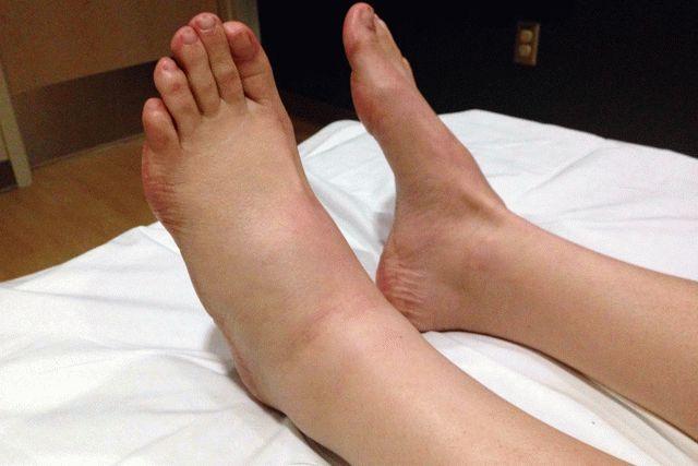 Когда нога болит что делать в домашних условиях
