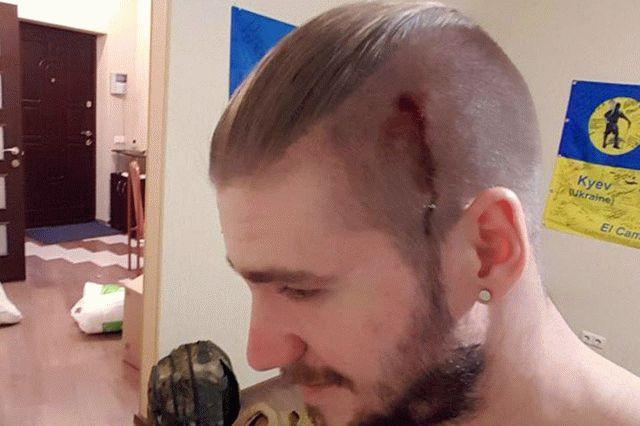 Бойцу ВСУ разбили голову в Киеве: кто и зачем напал на Валеру Ананьева, выясняет полиция